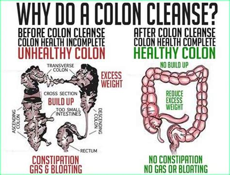 the benefits of colon cleansing picture 2