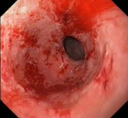Inflamed stomach due cholesterol medication picture 5