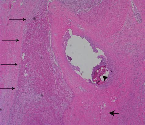 insufficient uterine enlargement picture 1