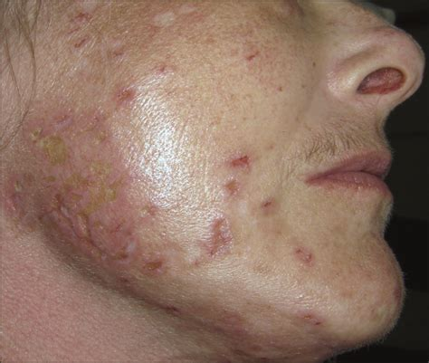 magellan's skin disease picture 5