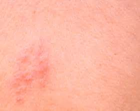 is herpes zoster contagious picture 15