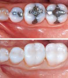 bradenton teeth whitening picture 14
