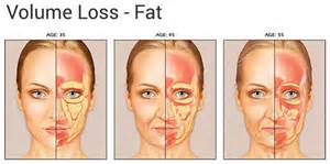 luminus ipl and fat loss picture 2