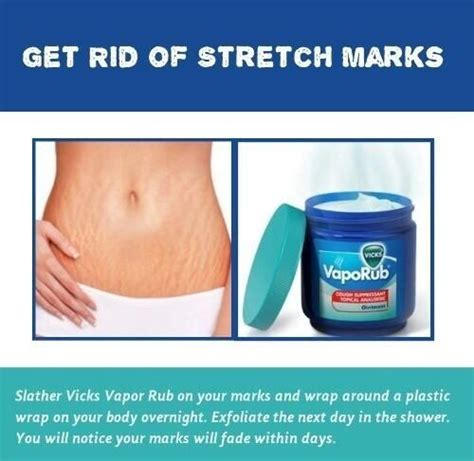 can you actually get rid of stretch marks picture 5
