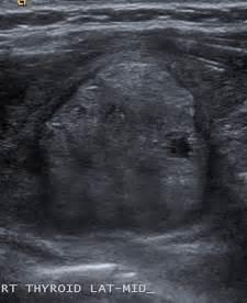 benign thyroid nodules picture 5
