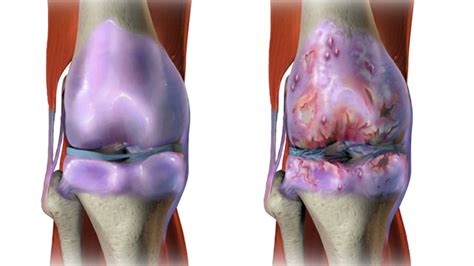 picture knee joint picture 13