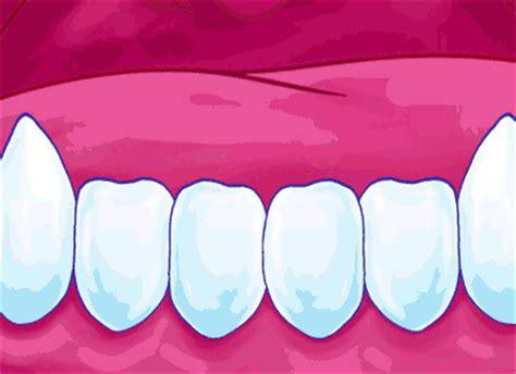 cavities in wisdom teeth picture 5