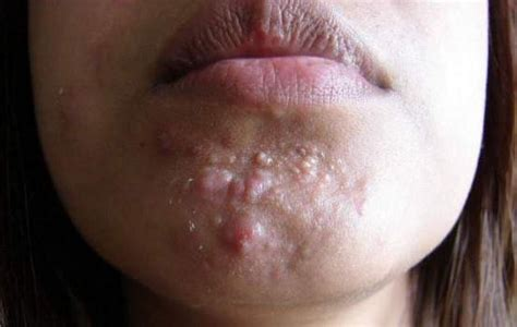 what causes reoccuring pimpes of the upper lip picture 8