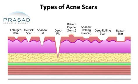 what is cystic acne picture 9