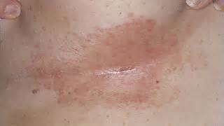 dr schultz yeast infections picture 3