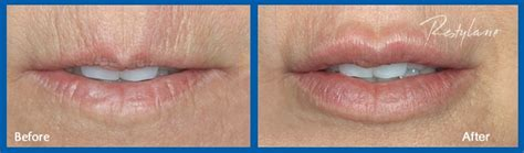 restylane for lips picture 7
