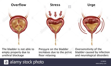 el and bladder incontinence picture 10