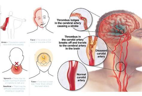 sintomas ng may cholesterol picture 6