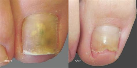impulse laser and toe fungus picture 15