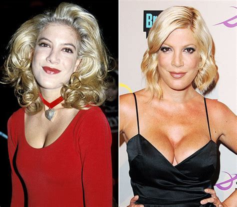 breast augmentation mishaps picture 6