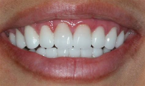 childrens teeth discoloration and veneers picture 14
