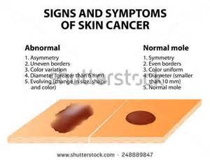 signs and symptoms coxydia in s picture 10