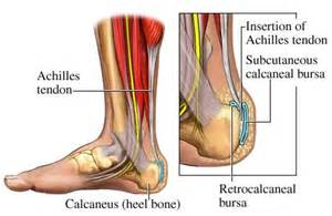 ankle joint effusion and ruptured achilles tendon picture 6