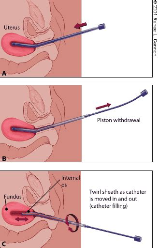 bladder torture tickling picture 2