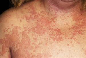 can you cause yourself skin cancer picture 11
