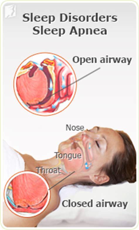 sleep apnea symptoms picture 9