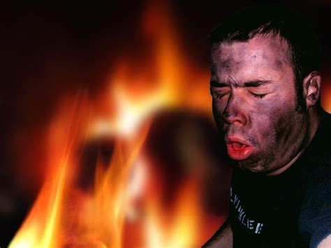 after effects of smoke inhalation picture 18