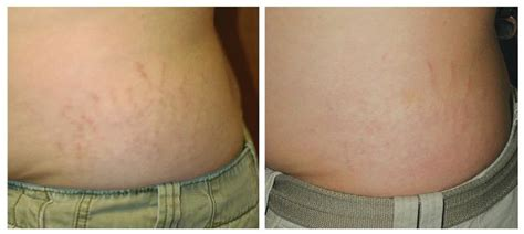 fraxel stretch mark removal photos picture 6
