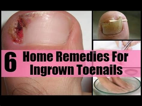 remedies for toenail fungus+ painting toenails picture 12