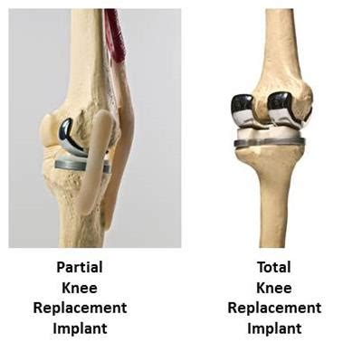 partial knee joint replacement picture 6