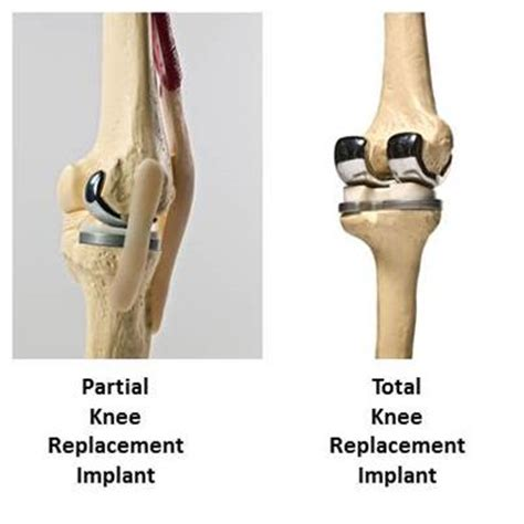 overstuffed knee joint replacement repair picture 6