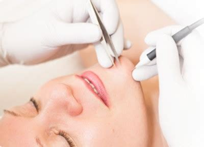 electrolysis hair removal in maldives picture 3