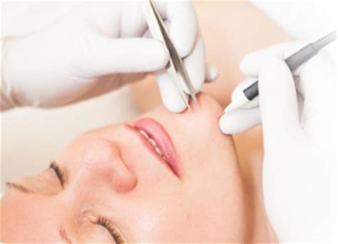 chin hair removal women picture 2