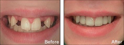 fluoride bad for teeth picture 7
