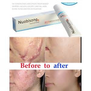 how buy revitol face scar cream in pakistan picture 14
