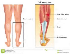 calve muscle tear picture 15