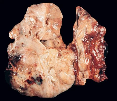 anaplastic thyroid cancer picture 4