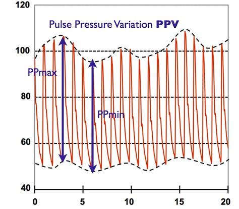 Arterial blood pressure picture 5