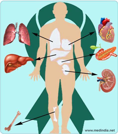 liver transplant recipients no longer get ssdi picture 11