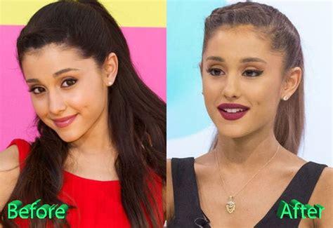 Lip implant picture 13