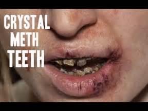 cystal meth ruin teeth picture 3
