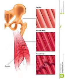 muscle strain picture 17