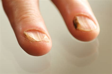fungus nail picture 7