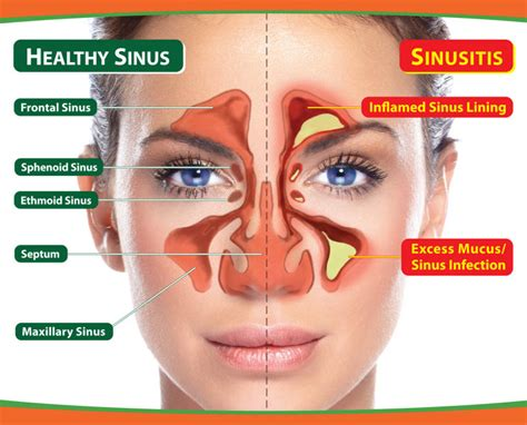 sinus pain relief picture 1