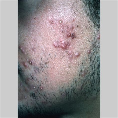 drain an acne cyst picture 6