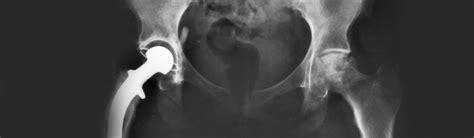 bladder sling lawsuits / 2015 nj coloplast / picture 2