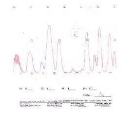 do electrocardiograms directly measure action potentials in individual picture 11