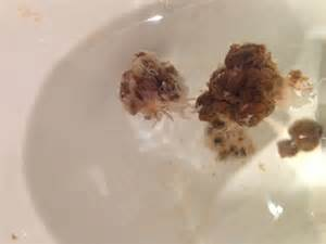 pale bowel movements picture 5