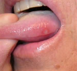 are herpes sores on both sides picture 8