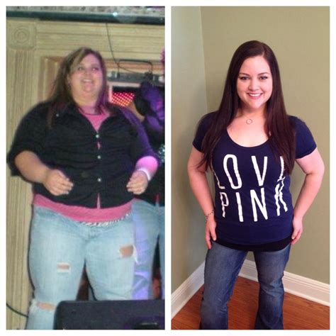 weight loss 6 months after gastric sleeve picture 12