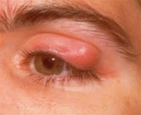 what symptoms can you get from herpes picture 3